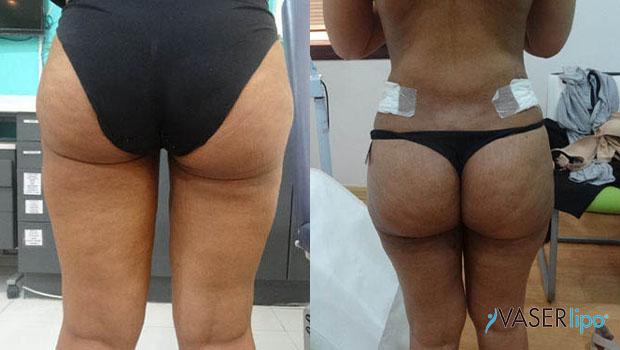 Confronto tra prima e dopo liposuzione vaser ai glutei di una donna