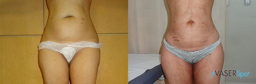 Confronto tra prima e dopo vaser lipo addome di donna