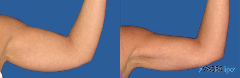 Confronto tra prima e dopo vaser lipo alle braccia di una donnaonna