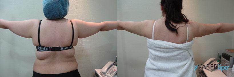 Confronto tra prima e dopo lipo 4d vaser alle braccia di una donna