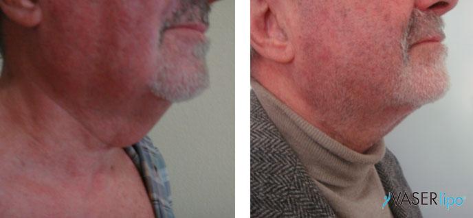 Confronto tra prima e dopo vaser lipo al mento di un uomo