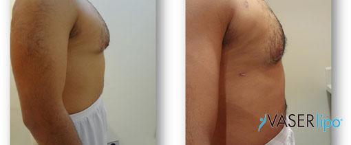 Confronto tra prima e dopo liposuzione hd per ginecomastia uomo