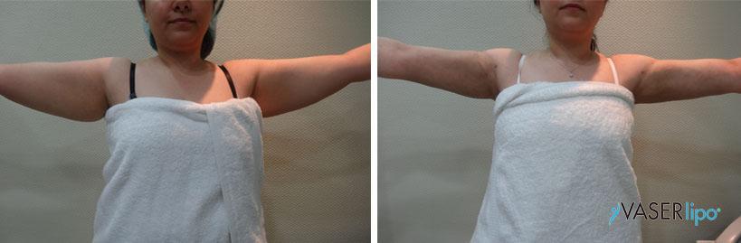 Confronto tra prima e dopo vaser lipo alle braccia di una donna