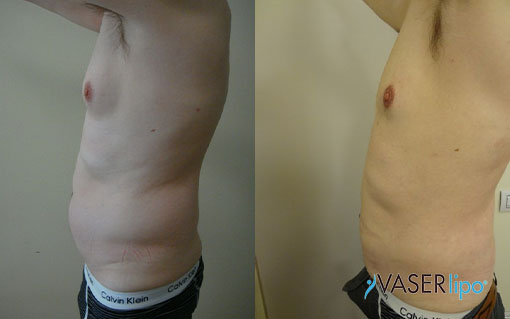 Confronto tra prima e dopo liposuzione hd per pancia uomo