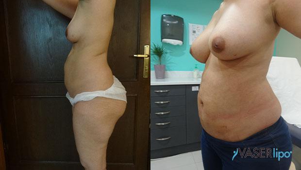 Confronto tra prima e dopo liposuzione hd per seno di una donna