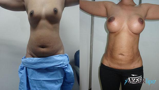 Confronto tra prima e dopo metodo vaser al seno di una donna